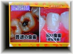 初期虫歯 白い虫歯の画像