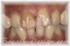 インターナルブリーチ 失活歯の漂白 術前