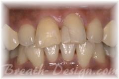 インターナルブリーチ 失活歯の漂白 術後