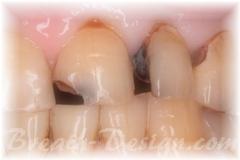 前歯の虫歯治療 ダイレクトボンディング