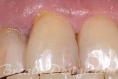 歯周病で歯がグラグラする(正面)