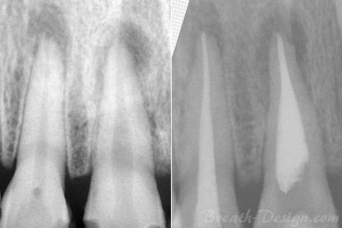 感染根管治療(歯内療法)術前・術後比較写真