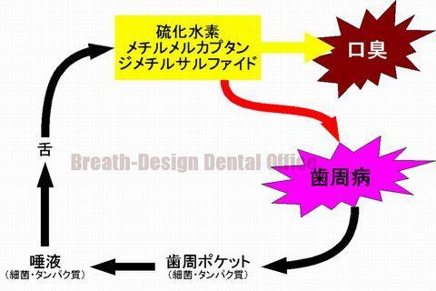 口臭と歯周病の破壊型スパイラル