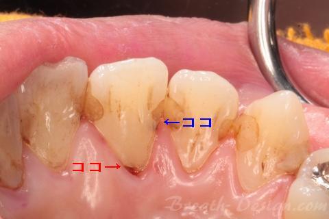 上顎前歯部の隣接面と歯頚部う蝕(コンタクトカリエス)