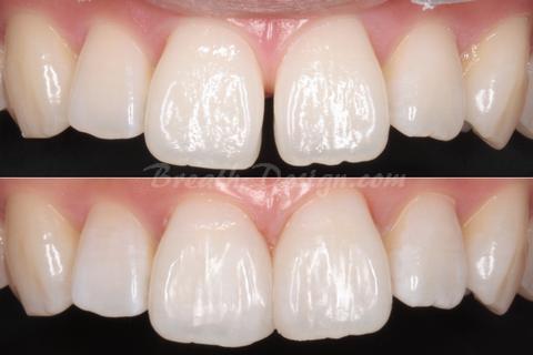 正中離開(すきっ歯)の修復治療