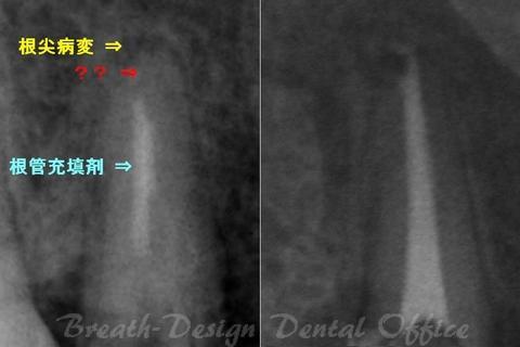 保存困難な歯の保存(感染根管治療)