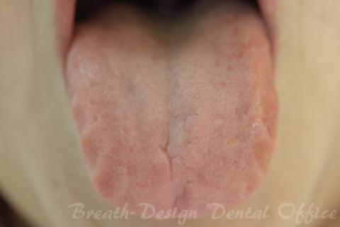 歯痕舌、肥大舌