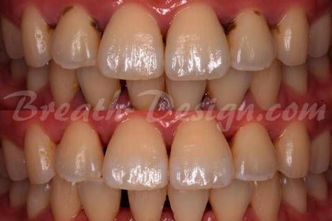 歯石 tartar(dental calculus)