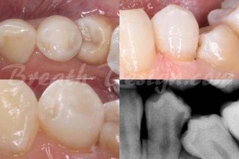 レントゲンがなければ見えないムシ歯