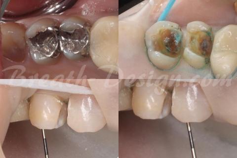 保険診療の銀歯 メタルインレー