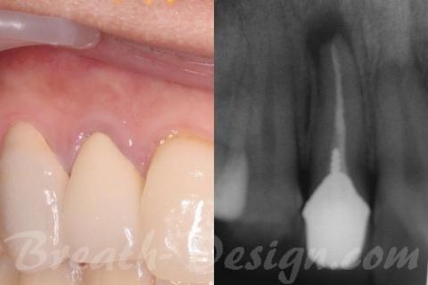感染根管治療(歯内療法)が必要なメタボンドクラウン