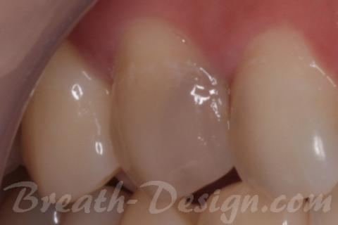 中で拡がったムシ歯で変色した歯
