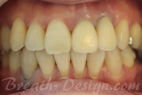成人歯列部分矯正(MTM) 審美修復治療