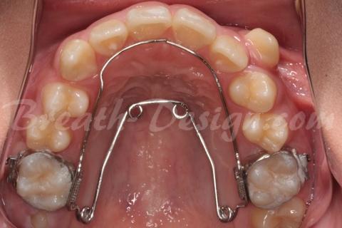 舌側(口蓋側)矯正装置 クワッドヘリックス
