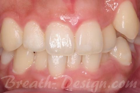 プラークコントロールと歯垢染色液