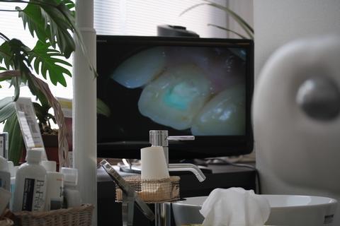 マイクロスコープの画像をテレビに映す