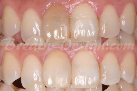 インターナルブリーチ 失活歯の漂白 術前術後