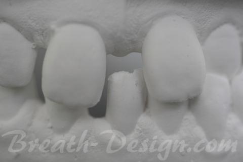 すきっ歯(正中離開)の治療シミュレーション 術前模型