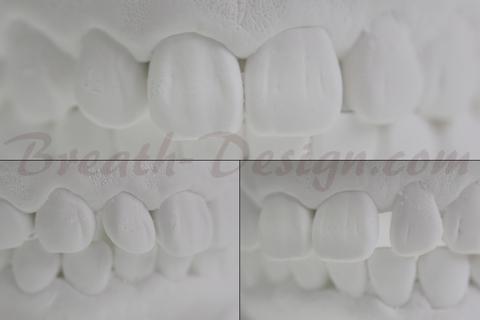 歯間離開(すきっ歯)のレジン治療シミュレーション