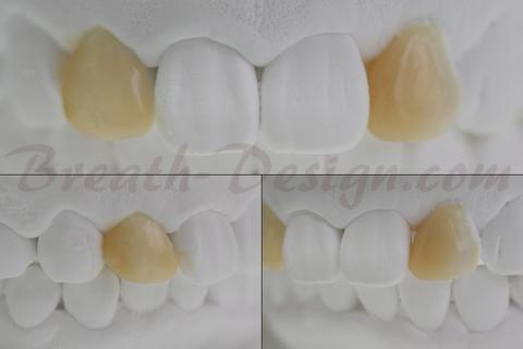 すきっ歯(歯間離開)の治療シミュレーション 術後模型