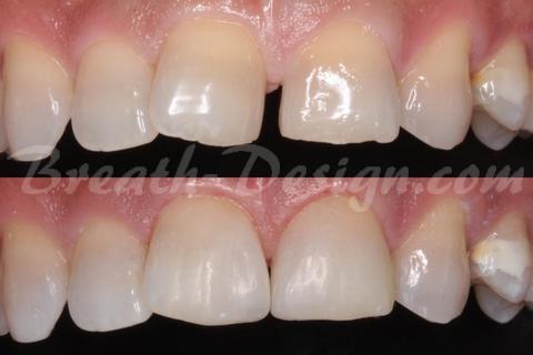 すきっ歯(正中離開)のレジン治療