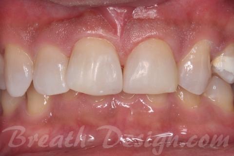 すきっ歯(正中離開)のレジン治療 ダイレクトベニア