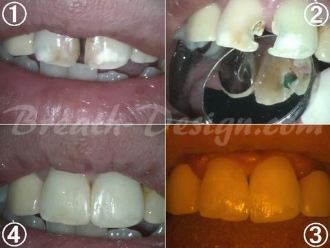 ダイレクトベニア すきっ歯のレジン治療