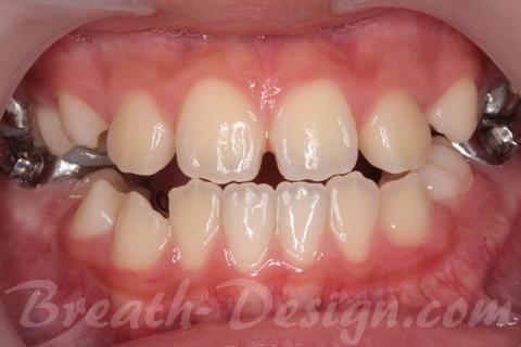 歯並び 歯列矯正歯科治療 舌側弧線矯正