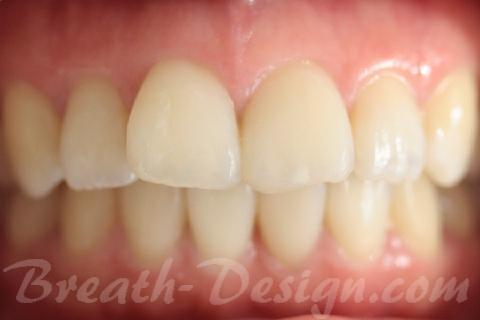 すきっ歯 レジン治療