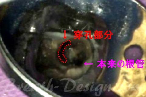 パーフォレーション・リペア 根管内穿孔の修復