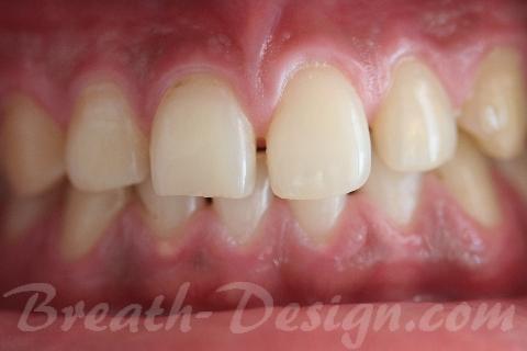 ダイレクトベニア すきっ歯のレジン治療 術前