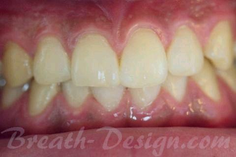 ダイレクトベニア すきっ歯のレジン治療 術後