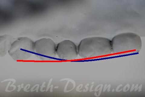 スピーの湾曲 矯正歯科