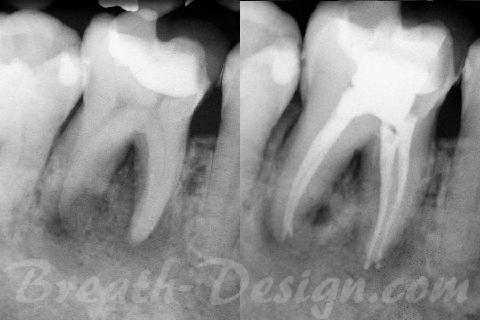 根管治療 第一大臼歯
