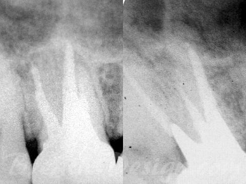 根管治療 上顎第一大臼歯