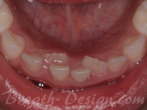 子どもの歯並び 歯列矯正治療