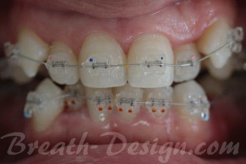 歯列矯正治療 歯並びの治療
