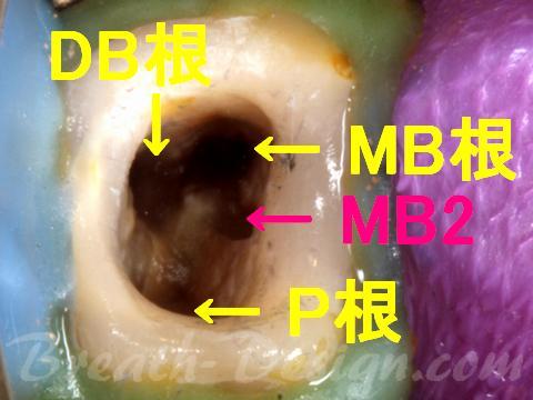 第4根管 MB2