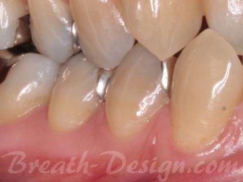 銀歯 メタルインレー