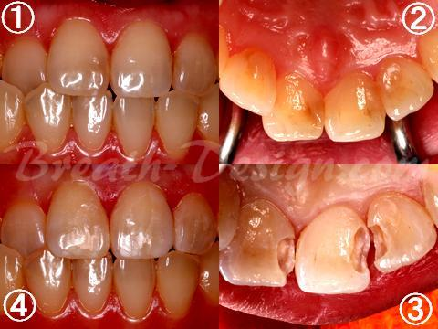 前歯のレジン治療