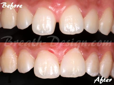 すきっ歯 レジン治療 比較