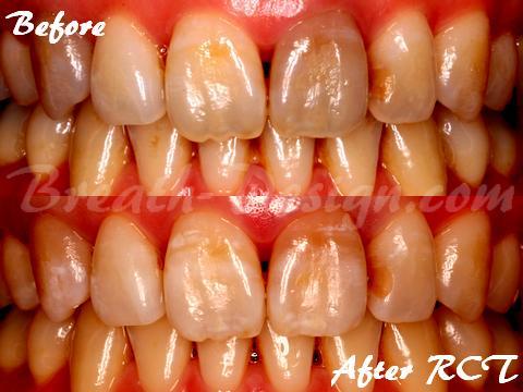 根管治療 変色歯