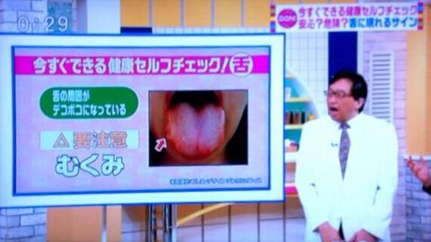 歯痕舌 水毒 むくみ