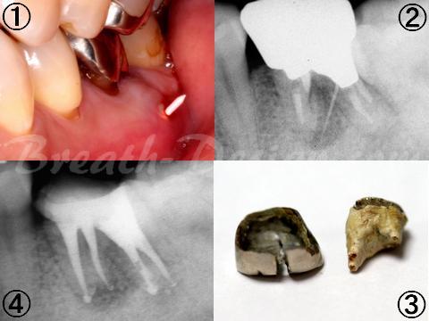 左下第一大臼歯 感染根管治療