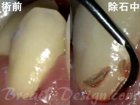 歯肉縁下歯石 スケーリング SRP