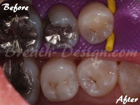 銀歯を白い歯 レジン治療