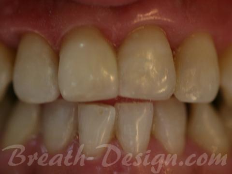 前歯のダイレクトベニア 捻転修正