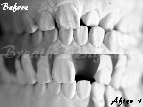 歯列矯正治療 模型シミュレーション