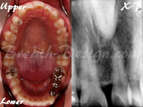 逆生埋伏歯 前歯