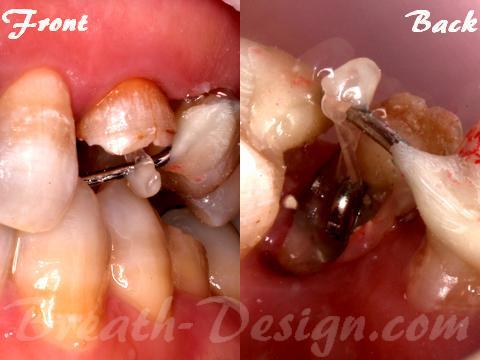 矯正的歯根挺出 エクストルージョン エキストルージョン